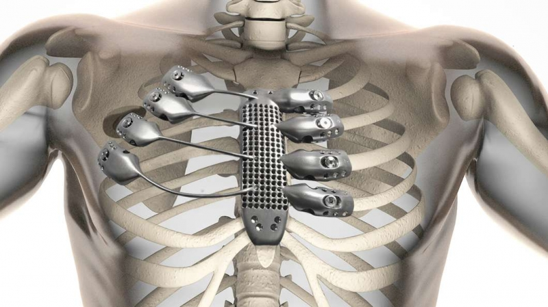 Cancer patient receives 3D printed titanium sternum and ribs in world-first surgery