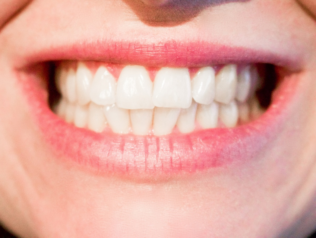 Drug used to treat Alzheimer's could regenerate teeth, eradicating the need for fillings