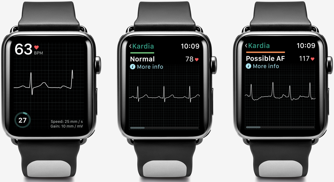 FDA clears first medical device accessory for Apple Watch