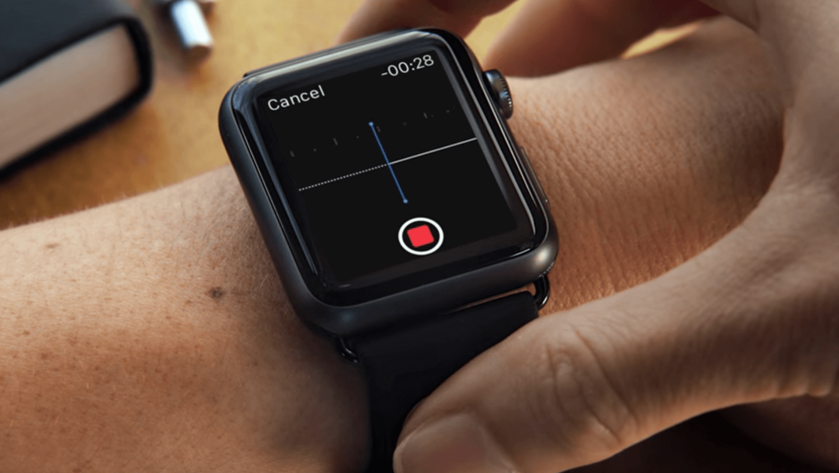 Apple Watch KardiaBand can detect high potassium levels without a