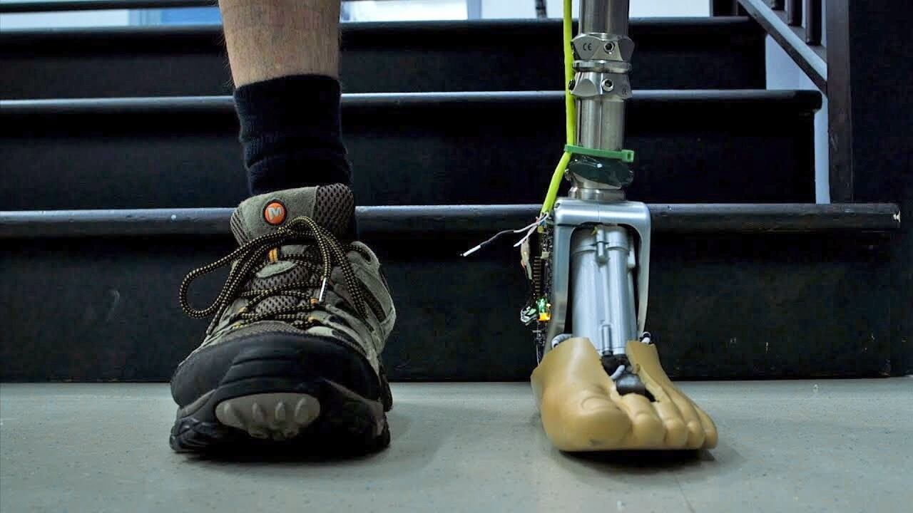 Smart prosthetic ankle lets users take on rough terrain and stairs with ease