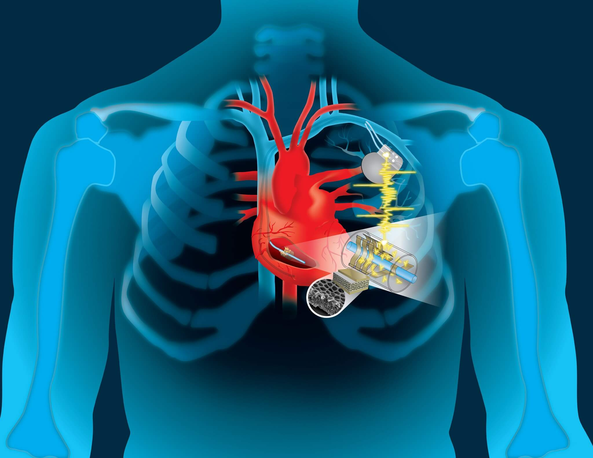 Engineers says self-charging pacemakers are only about five years away