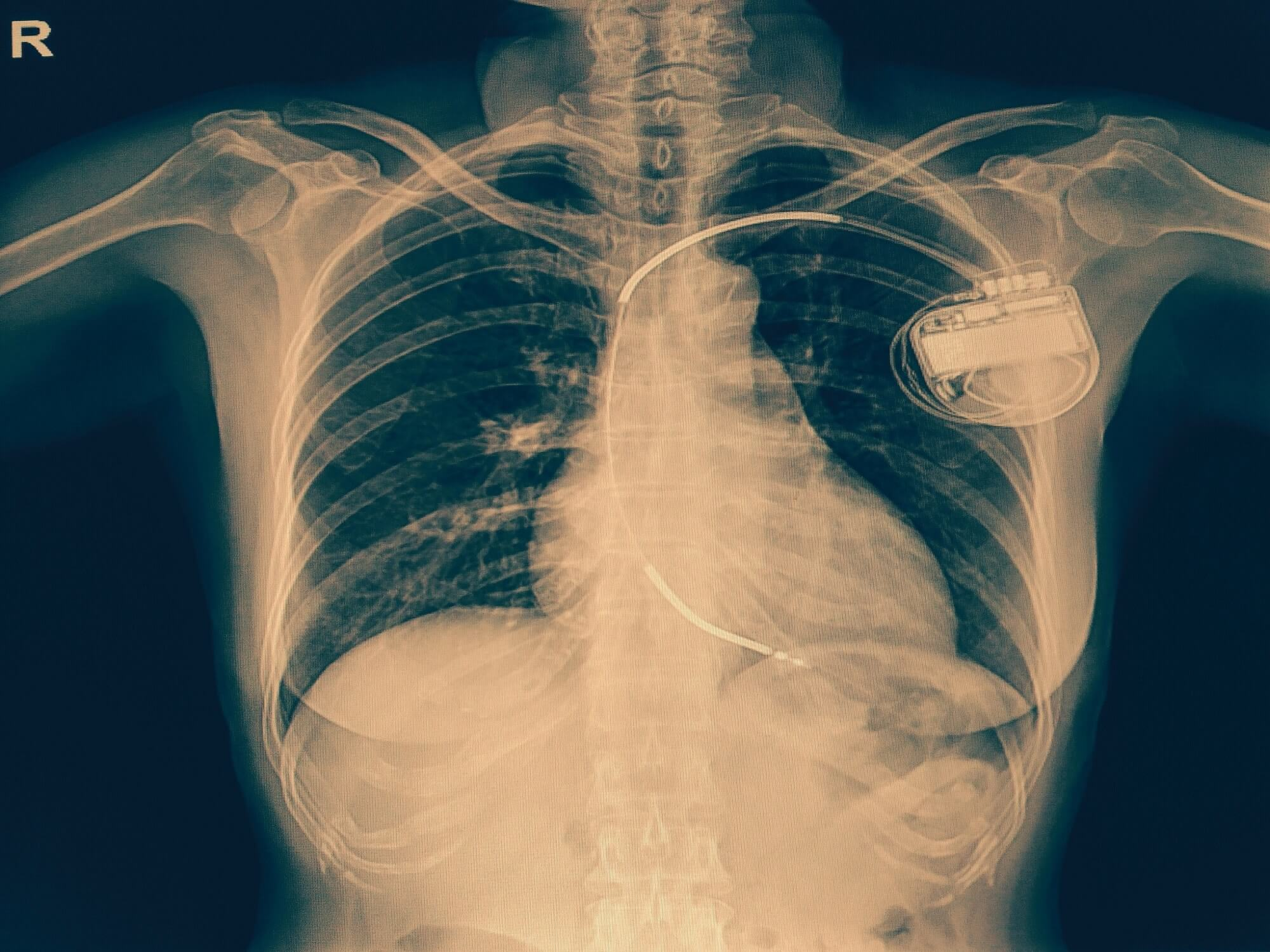 Vulnerability in thousands of Medtronic implantable defibrillators could let hackers control devices