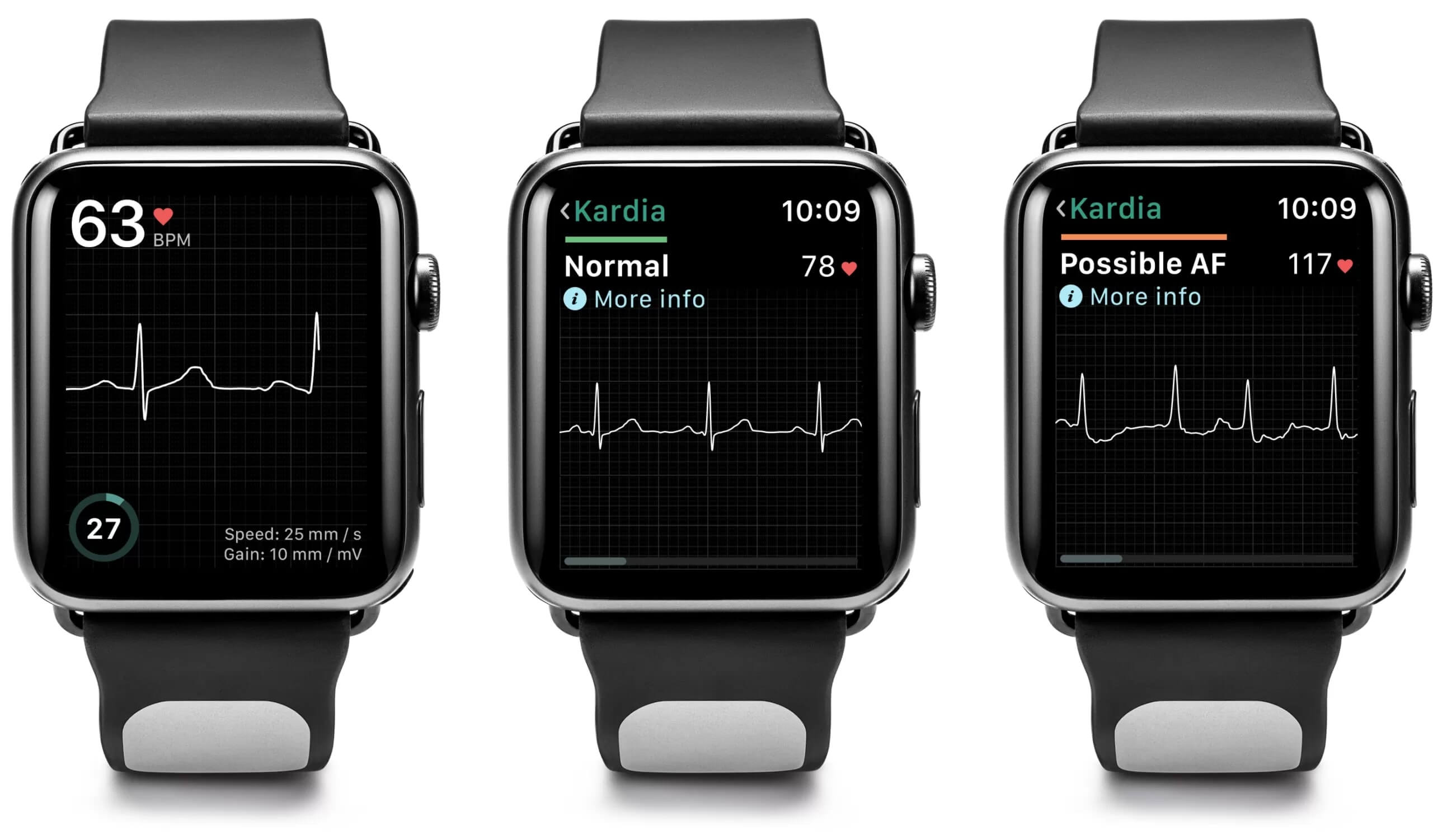 Apple Watch gets its first FDA-approved accessory to capture EKGs
